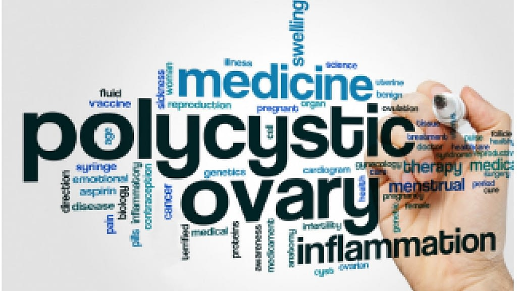 polycystic ovary inflammation word cloud