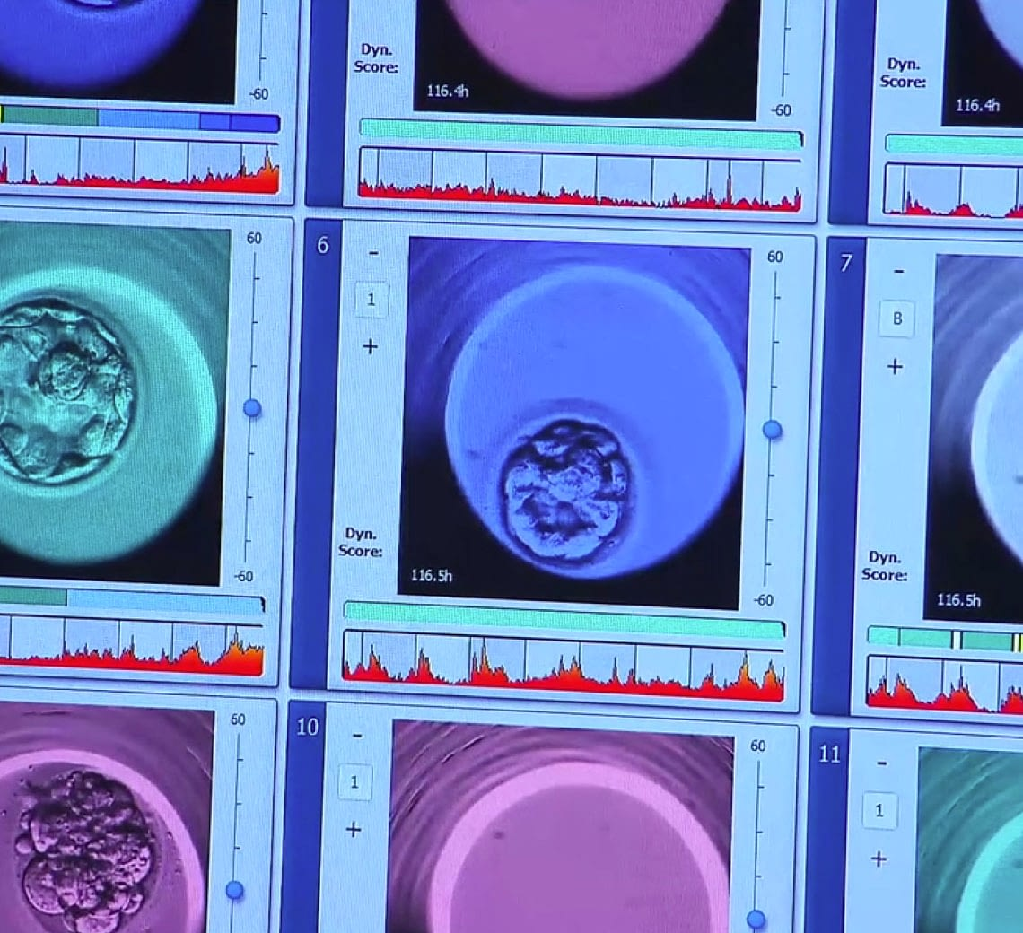 A photograph of a screen with photographs of stages of development of an embryo.